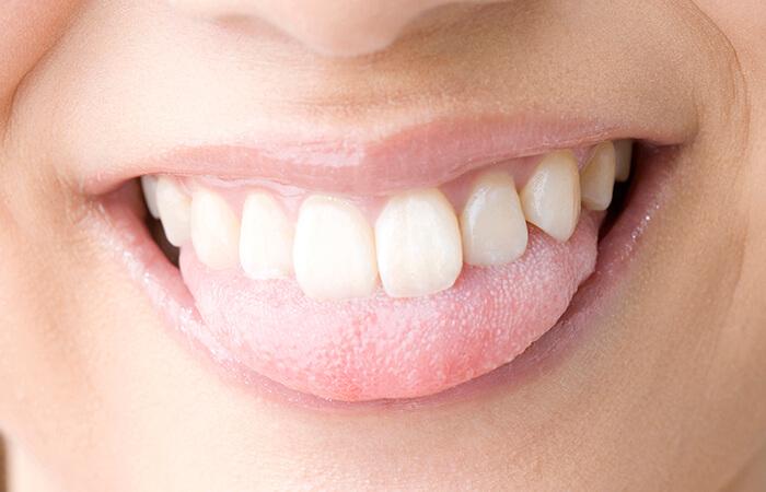 舌下免疫療法とは